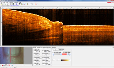OCT 2D Imaging Screen Shot