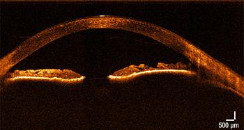 SL13 OCT Anterior Eye