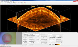OCT 3D Imaging Screen Shot